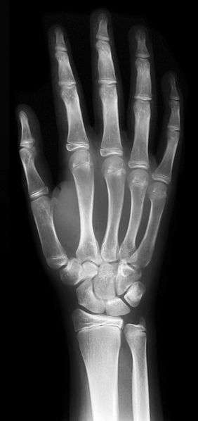 X-Ray of a hand by NFejza for Wikimedia